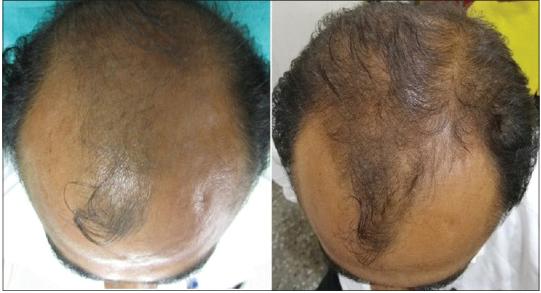 Peak Rejuvenation - PRP Hair Loss