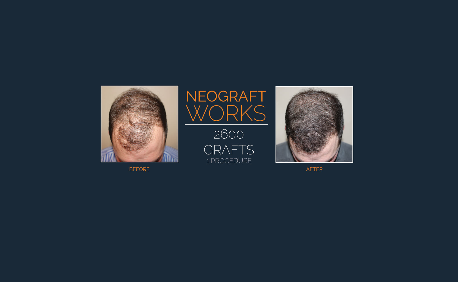Peak Rejuvenation - Neograft Slide