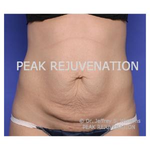 Preop Abdominoplasty (Tummy Tuck)