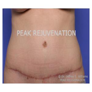 3 month Postop Abdominoplasty (Tummy Tuck)