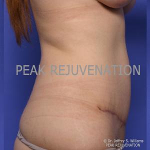 3 month Postop Abdominoplasty (Tummy Tuck) - Side View