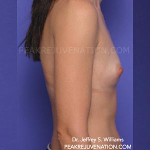 Preop Saline Breast Augmentation - Side View