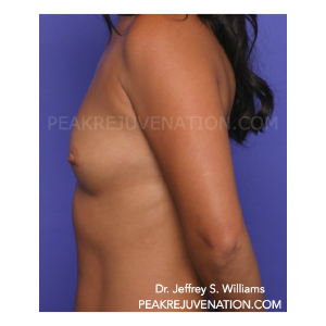 Preop Breast Augmentation - Side view