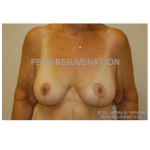 3 month Postop Breast Circumvertical + Horizontal Mastopexy for Ptosis Correction - Level 4 Ptosis