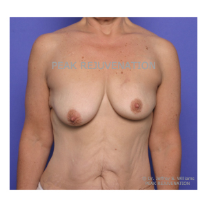 Preop Breast Reconstruction following Mastectomy for Cancer - Breast Augmentation-Mastopexy for Right Side and Permanent Implant Left Side