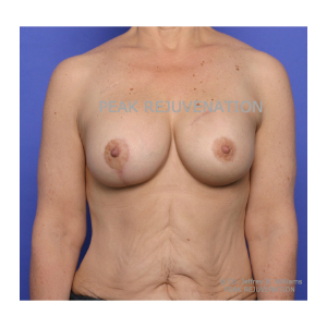 3 month Postop Breast Reconstruction following Mastectomy for Cancer - Breast Augmentation-Mastopexy for Right Side and Permanent Implant Left Side