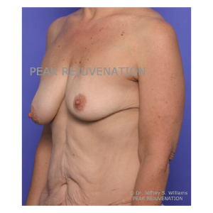 Preop Breast Reconstruction following Mastectomy for Cancer - Breast Augmentation-Mastopexy for Right Side and Permanent Implant Left Side - Side View
