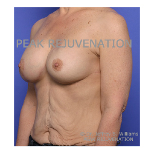 3 month Postop Breast Reconstruction following Mastectomy for Cancer - Breast Augmentation-Mastopexy for Right Side and Permanent Implant Left Side - Side View