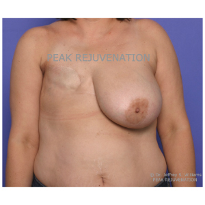 Preop Breast Reconstruction following Mastectomy for Cancer - DIEP Flap Reconstruction + Nipple Reconstruction for Right Side and Breast Reduction for Left Side