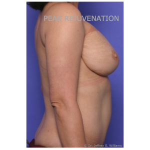 3 month Postop Breast Reconstruction following Mastectomy for Cancer - DIEP Flap Reconstruction + Nipple Reconstruction for Right Side and Breast Reduction for Left Side