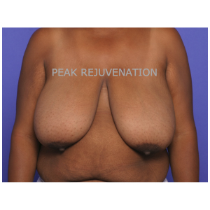 Preop Breast Reduction Mammaplasty for Breast Hypertrophy