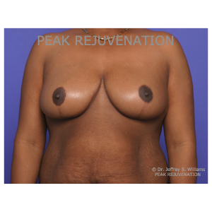 3 month Postop Breast Reduction Mammaplasty for Breast Hypertrophy