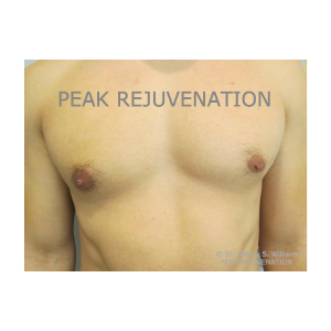 3 month Postop Male Breast Reduction for Right Gynecomastia