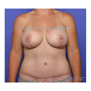 6 weeks Postop Mommy Makeover Combined Silicone Breast Augmentation Mastopexy + Abdominoplasty