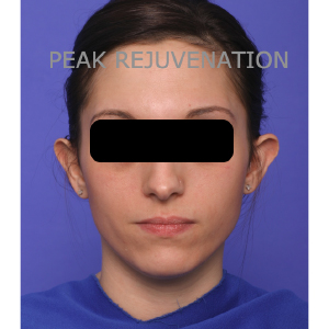 Preop Otoplasty for Prominent Ears