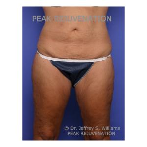 Preop Abdominoplasty (Tummy Tuck) + Thigh Lift (Thighplasty)