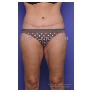 3 month Postop Abdominoplasty (Tummy Tuck) + Thigh Lift (Thighplasty)