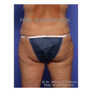 Preop Abdominoplasty (Tummy Tuck) + Thigh Lift (Thighplasty) - Posterior View