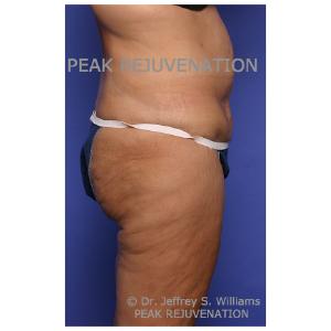 Preop Abdominoplasty (Tummy Tuck) + Thigh Lift (Thighplasty) - Side View