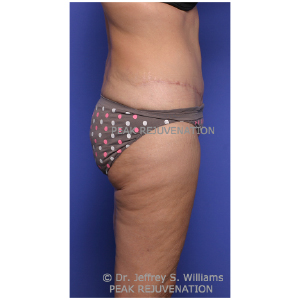 3 month Postop Abdominoplasty (Tummy Tuck) + Thigh Lift (Thighplasty) - Side View