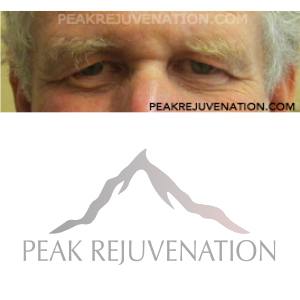 Preop Blepharoplasty (Eyelid Reduction) + Endoscopic Browlift