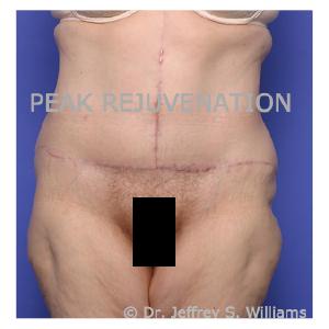 6 weeks Postop Fleur-de-lis Abdominoplasty (Tummy Tuck) following Massive Weight Loss