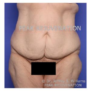 Preop Fleur-de-lis Abdominoplasty (Tummy Tuck) following Massive Weight Loss